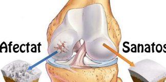 medicamente articulare costisitoare articulațiile rănite de făcut
